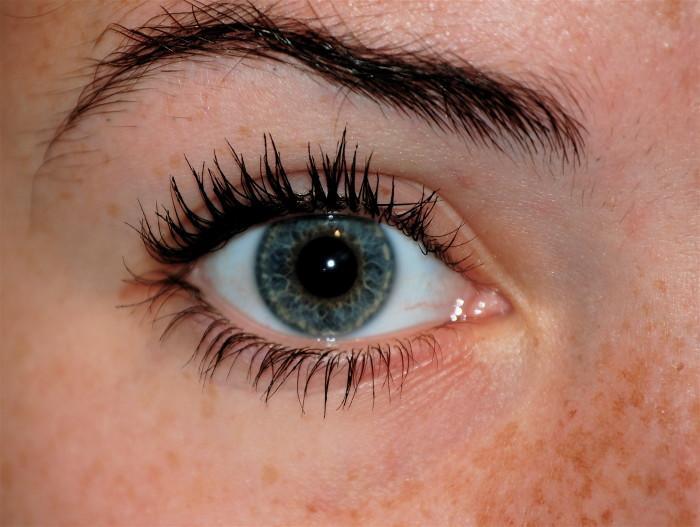 Abby's eye